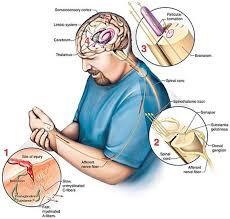 brain on pain